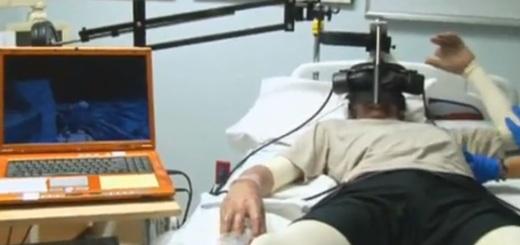 Virtual burn therapy